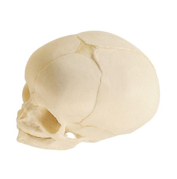 Artificial Skull of a Fetus