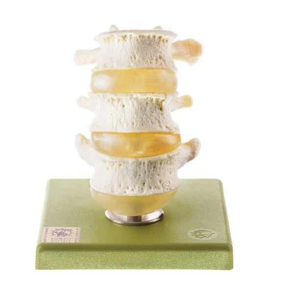 Three Lumbar Vertebrae with Discs