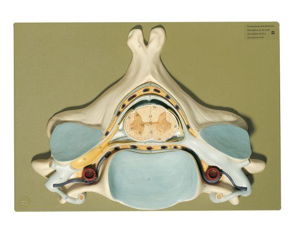 Fifth Cervical Vertebra