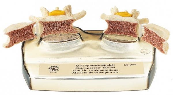 Osteoporosis Model