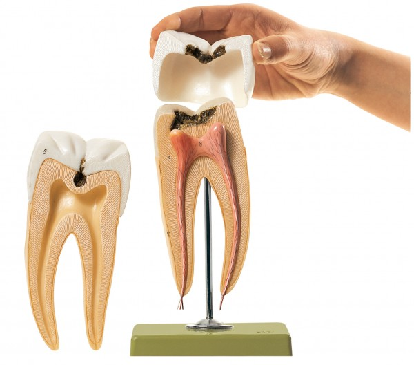 Molar Tooth with Caries