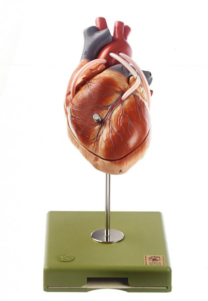 Model of the Heart with Bypass Vessels (Aortic Coronary Venous Bypass)