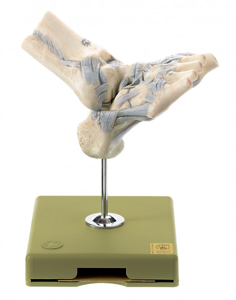 Fussgelenkbänder mit eröffnetem Talonavicular-Gelenk