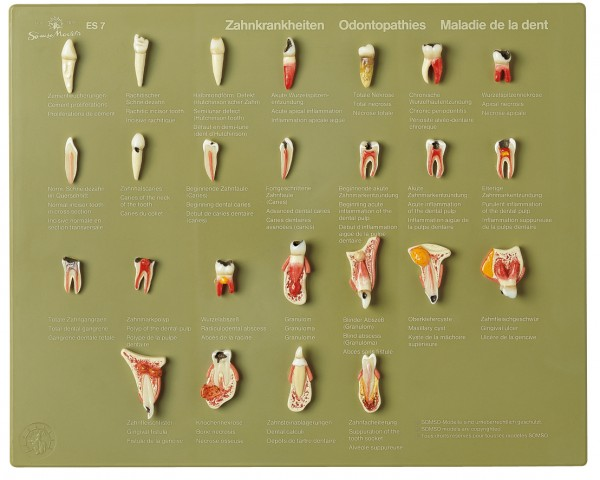 "Case of Teeth ""Odontopathies"""