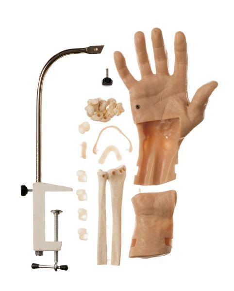 Arthroskopiemodell vom Handgelenk